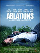 Ablations FRENCH DVDRIP 2014